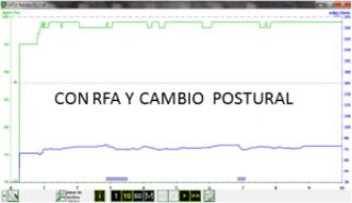 Gráfica del pulsioximetro con rfa y cambio postural