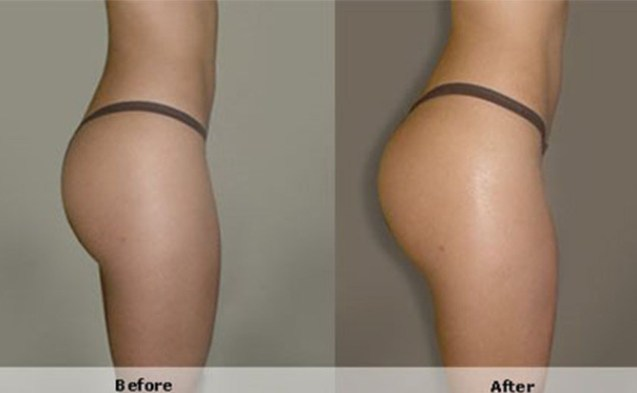 Hyaluronic Acid Buttocks Injection Before And After