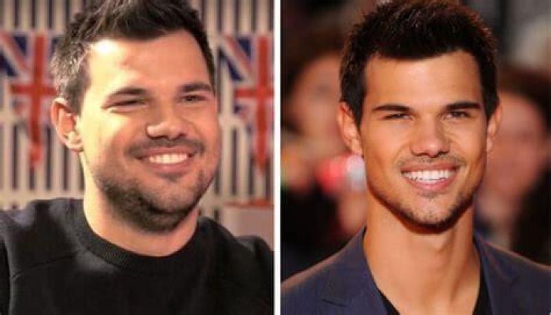 Taylor Lautner fat loss facial aesthetics