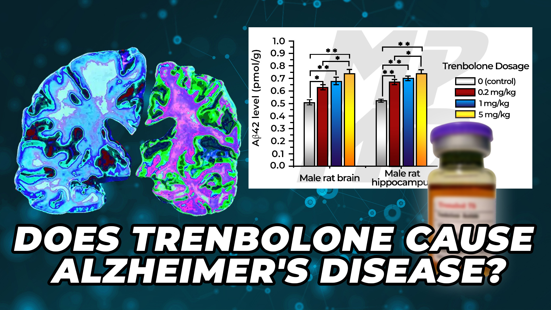 Beta Amyloid Plaque Built Up In The Brain Beside A Bottle Of Trenbolone. Trenbolone increased Beta Amyloid Plaque build up in a rodent model, suggesting that Trenbolone may cause Alzheimer's