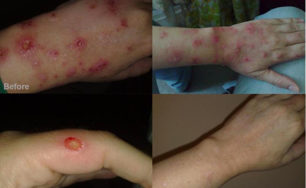 Morgellons Disease Awareness Morgellons Disease Tips For Healing Lesions Oral Care And
