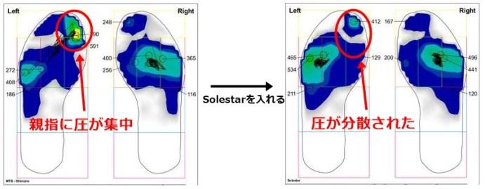 あらゆる悩みを解決する魔法のインソール「Solestar Kontrol」インプレッション。 コントロール 圧力集中