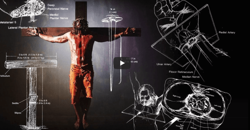 Jesus' Suffering and Crucifixion - A Medical Point of View