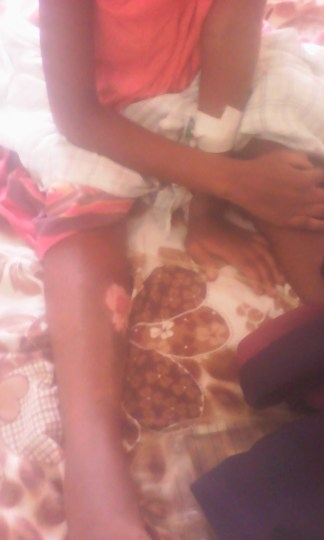 Muslim Father in Uganda Burns Daughter After She Converted to Christianity