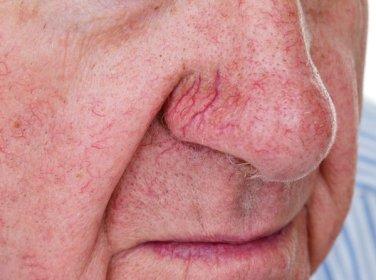 Face veins