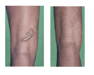 varicose before and after courtesy of sigvaris
