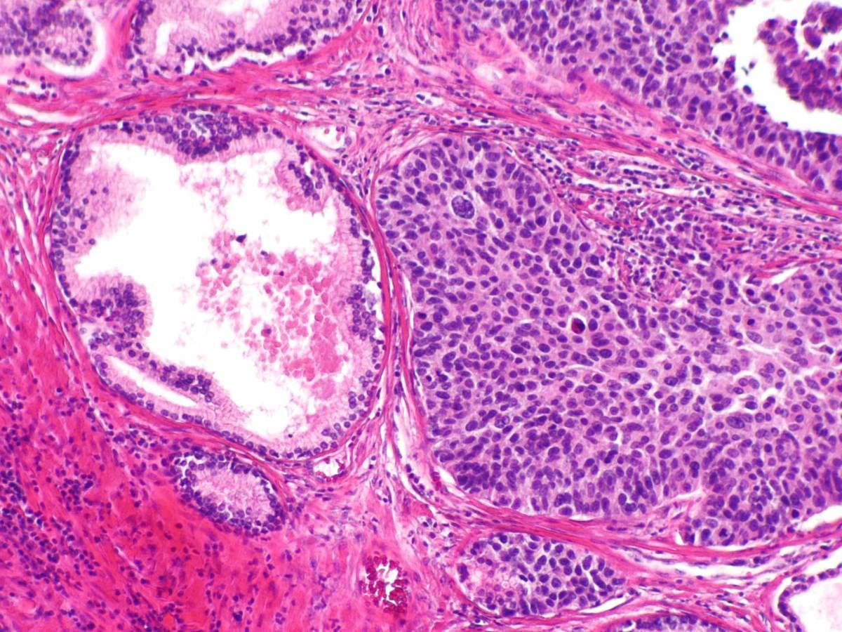 «Китруда» : самый эффективный ИИКТ в борьбе с раком мочевого пузыря