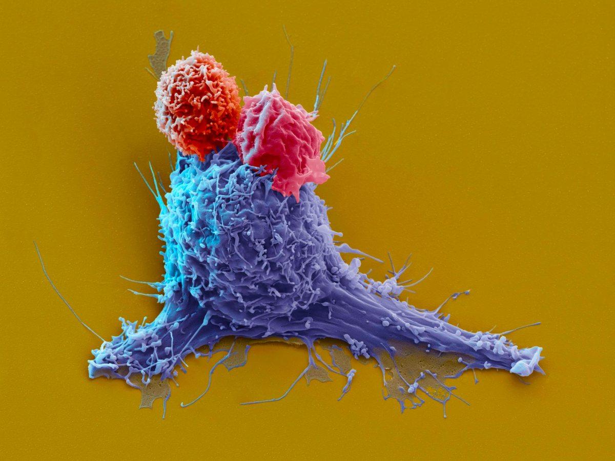 CAR-T-клеточная терапия: эффективное лечение рефрактерных агрессивных неходжкинских лимфом