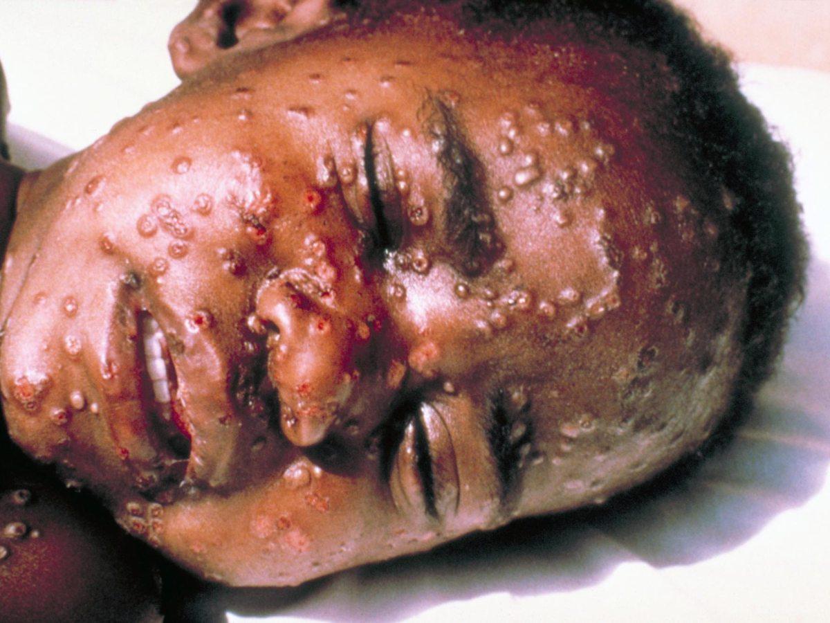 «Типокс»: первое в мире лекарство против черной оспы