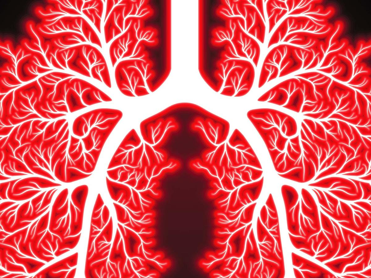 lungs 1 - AstraZeneca полностью вылетела из большой гонки за раком легкого