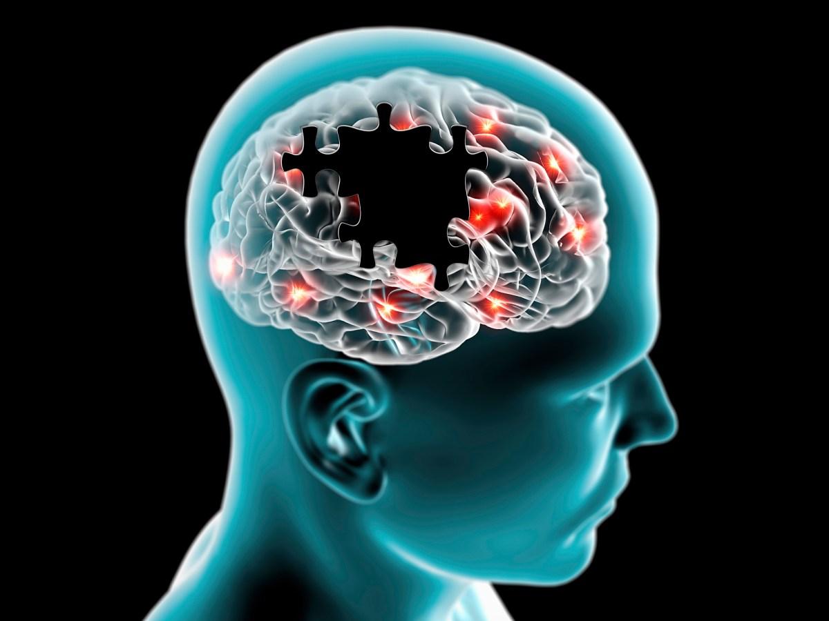 Синтезируемые в головном мозге антитела против болезни Паркинсона