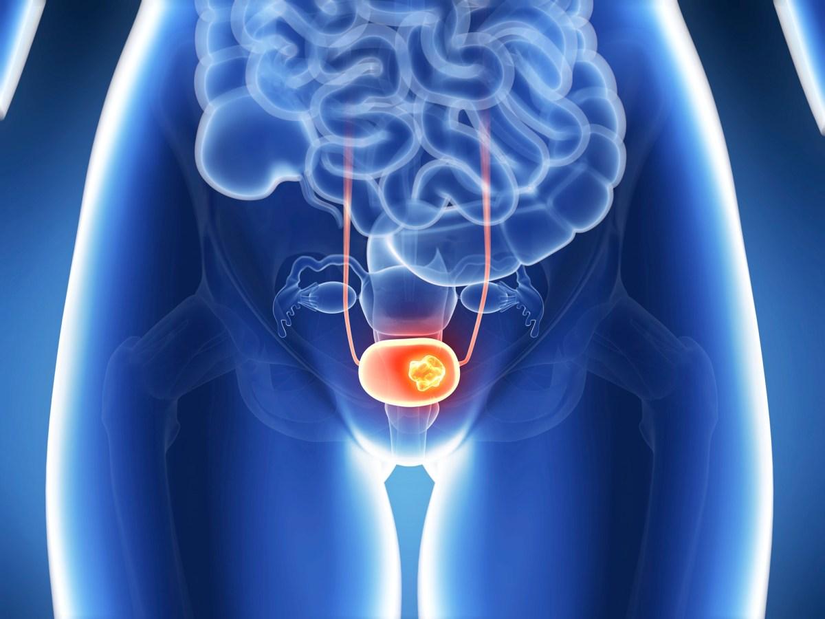 «Балверса»: первая таргетная терапия метастатического рака мочевого пузыря