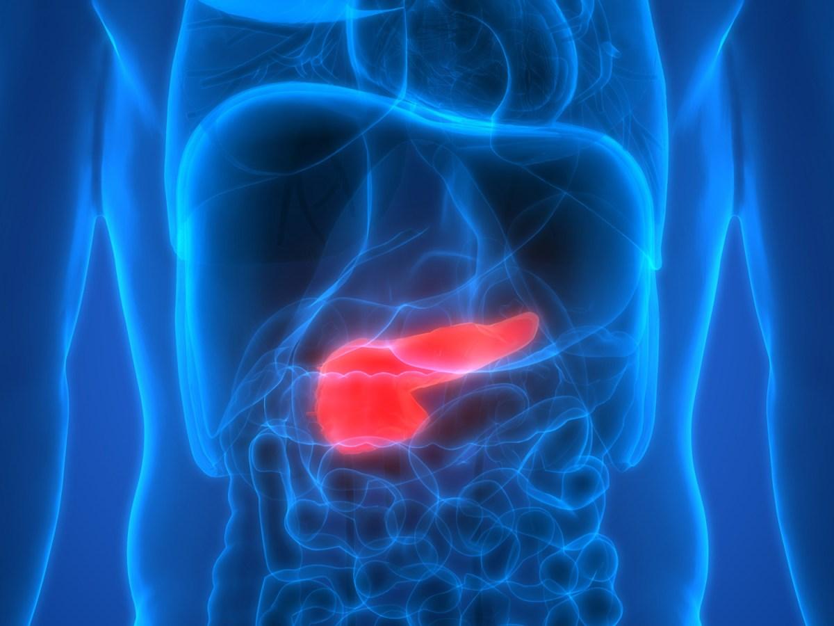 Рак поджелудочной железы и ингибирование PARP
