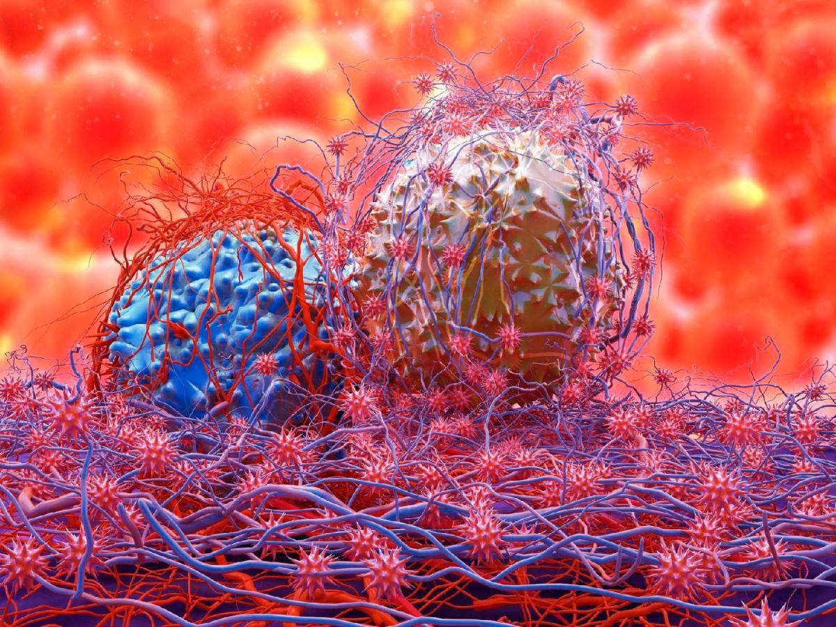 cancer cell 1 - «Китруда» против трижды негативного рака груди: пока не получилось