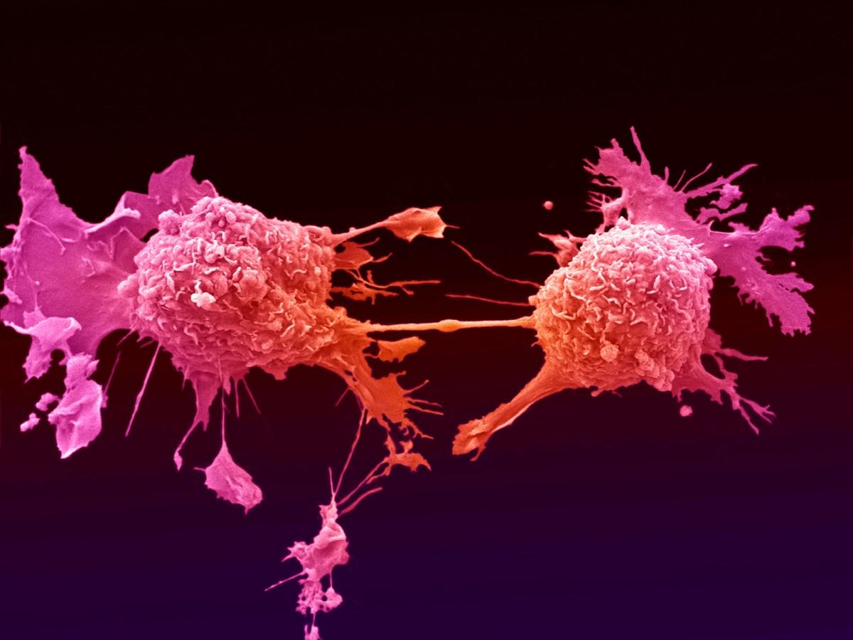 «Инстиладрин»: генная терапия рака мочевого пузыря