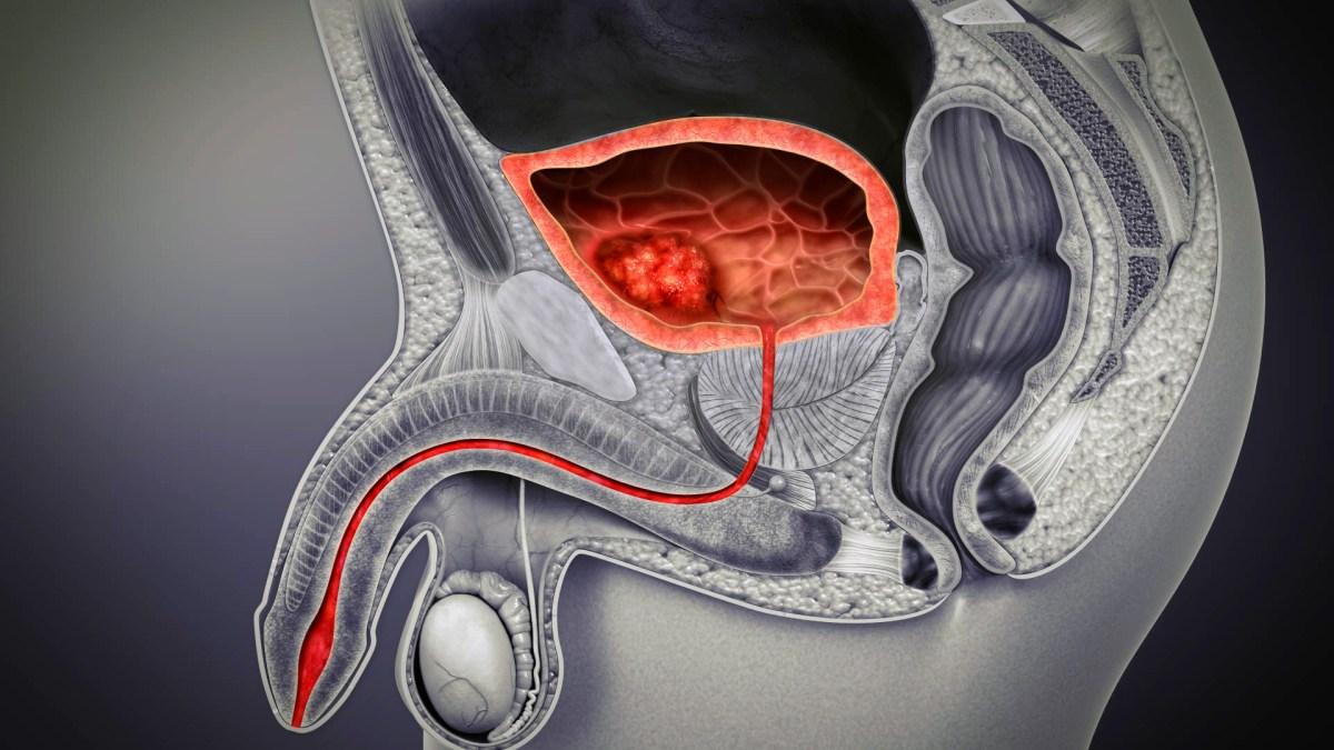 «Падсев»: продление жизни при уротелиальном раке