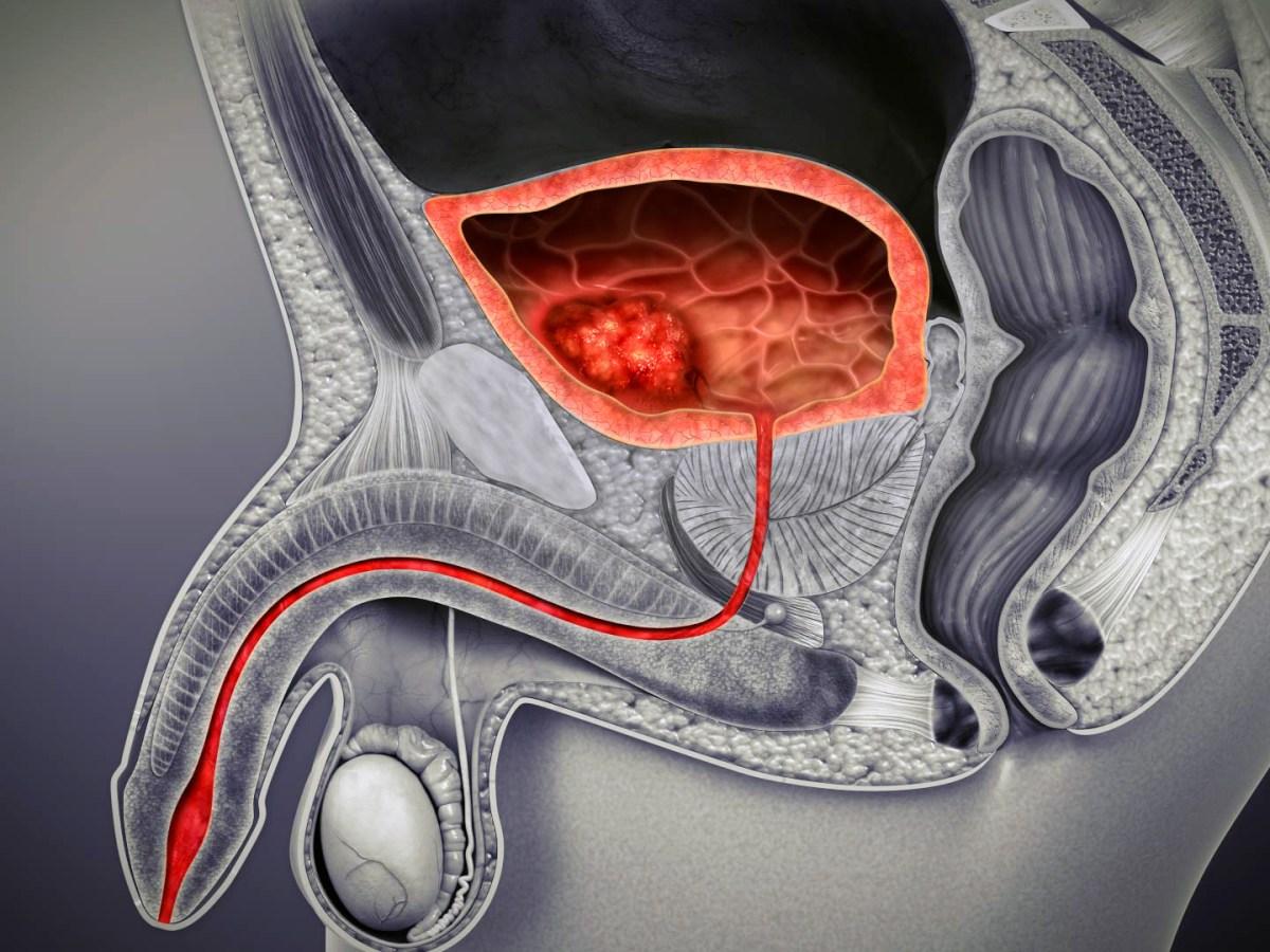 bladder cancer - «Падсев»: продление жизни при уротелиальном раке