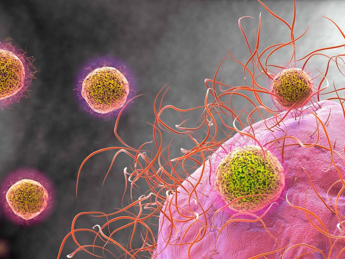 «Монджуви»: мощное лекарство против диффузной B-крупноклеточной лимфомы