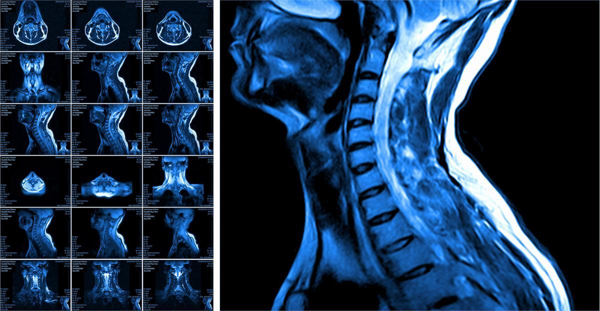 Ксевинапант: новое лечение местнораспространенного рака органов головы и шеи