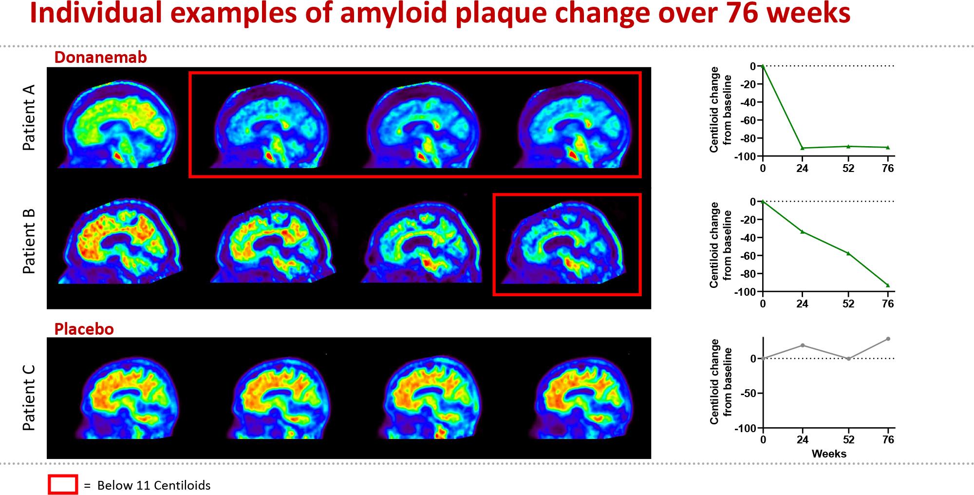 Донанемаб: возможное лекарство против болезни Альцгеймера
