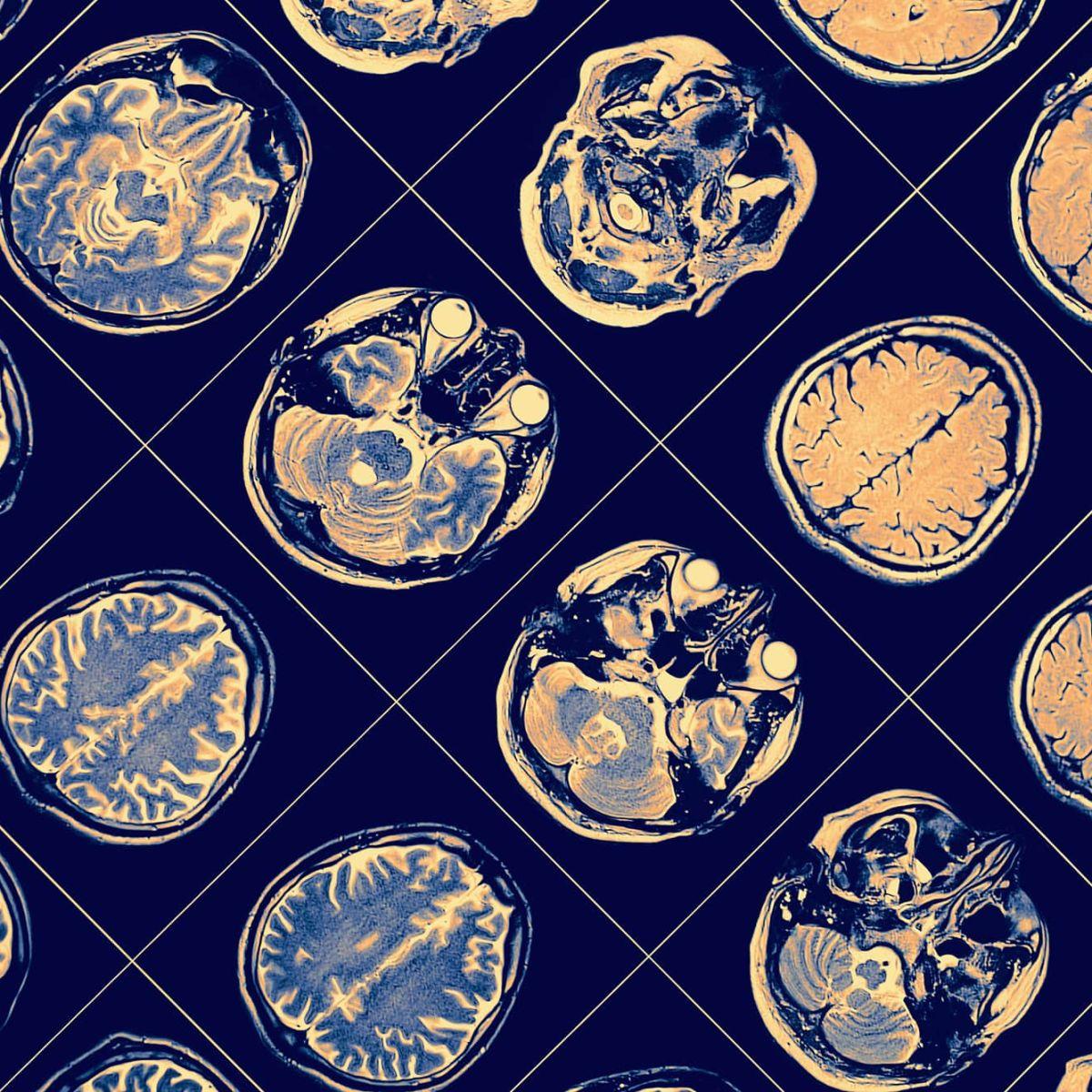 Посифен: прорыв в лечении болезни Альцгеймера и болезни Паркинсона