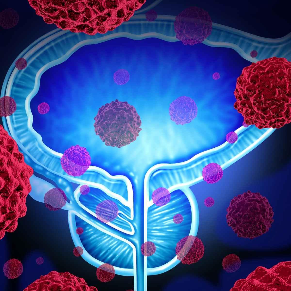 «Линпарза»: новый шаг в лечении рака простаты