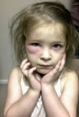 10 best Mosquito Bite Remedies for Babies