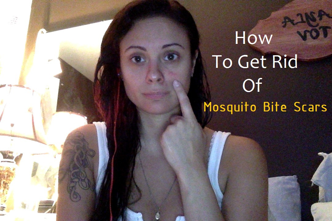 How to get rid of mosquito bite scars