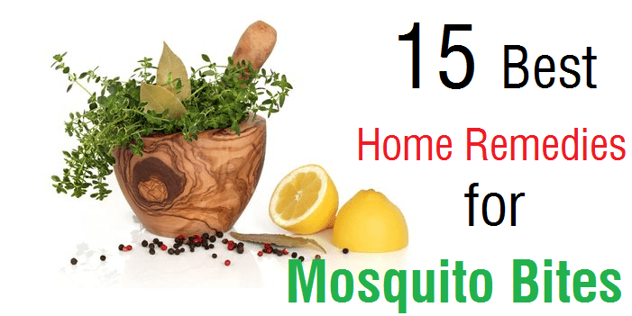 15 Best Home Remedies for Mosquito Bites