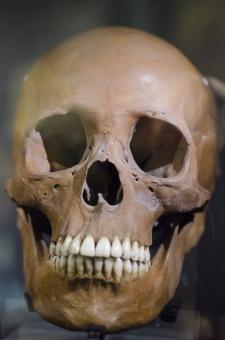 頭部の無い首つり死体の謎 2