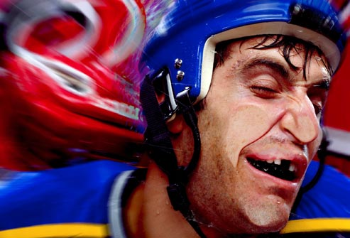 getty_rm_photo_of_hockey_player_missing_tooth
