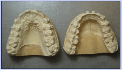 """Résultat de recherche d'images pour """"modèle empreinte dentaire en plâtre dur"""""""