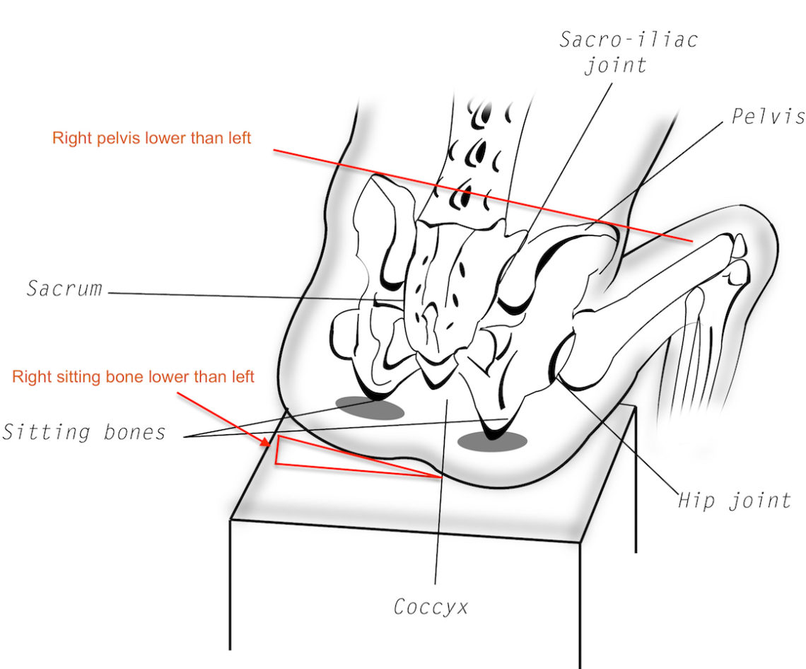 Diagram Of Female Hip Bones