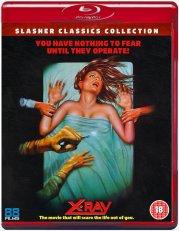 X-ray-slasher-88-Films-Blu-ray