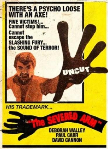 Severed-Arm