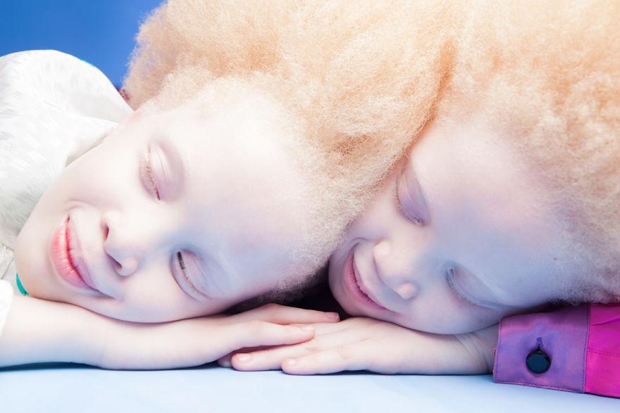 Vinicius Terranova – jumelles albinos 02