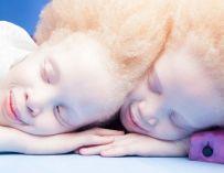 Lara et Mara Bawar, des jumelles albinos dont la beauté unique se fait remarquer dans le monde entier