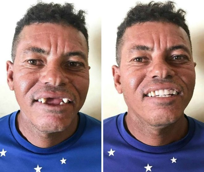 brazilian-dentist-travel-poor-people-teeth-fix-felipe-rossi-43-5db954348afc6__700