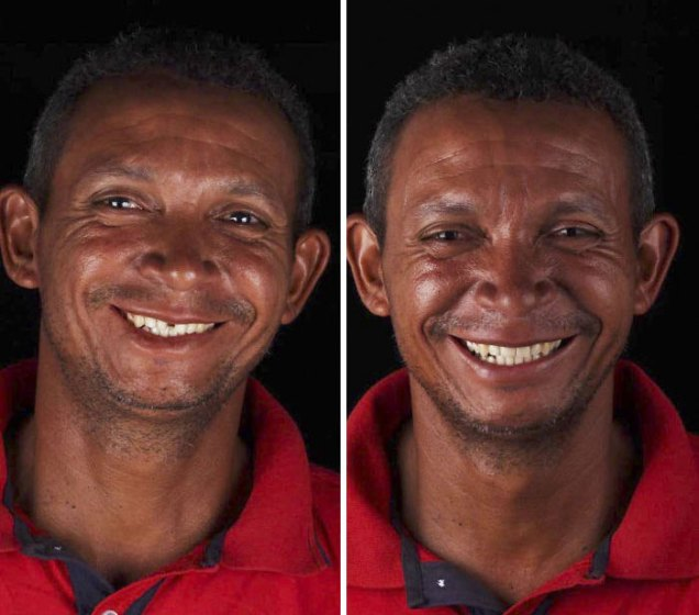 brazilian-dentist-travel-poor-people-teeth-fix-felipe-rossi-53-5db956601c6f6__700