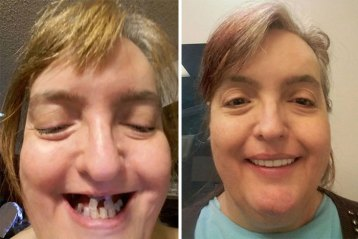 dentist-transformations-600-5dc026f6dbd03__700