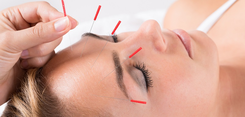 Hand Performing Acupuncture Therapy On Head