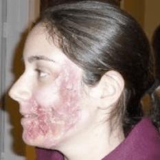 Burn Scar