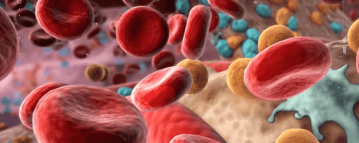 understanding polycythemia vera