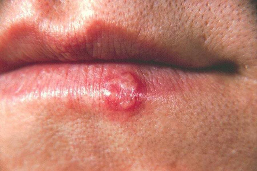 Comment guérir l'herpès naturellement (labial et génital) ?