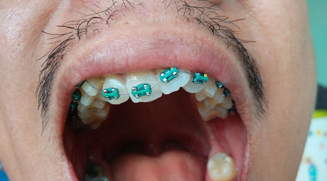Getting Braces in Thailand: My Unanticipated Orthodontic Journey