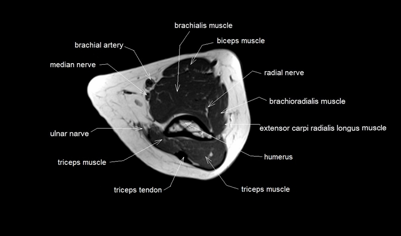 Cross Sectional Anatomy For Mri Of Elbow