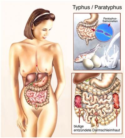 Typus Krankheit