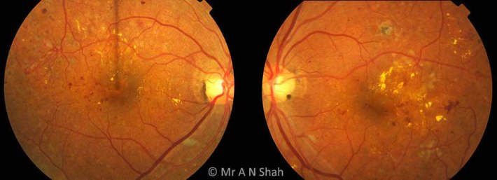 These images show the are the right and left retina of a patient with diabetic retinopathy. There are retinal haemorrhages (red patches), exudate deposition (yellow patches) and in the right eye there is growth of new blood vessels together with previous laser treatment scars.