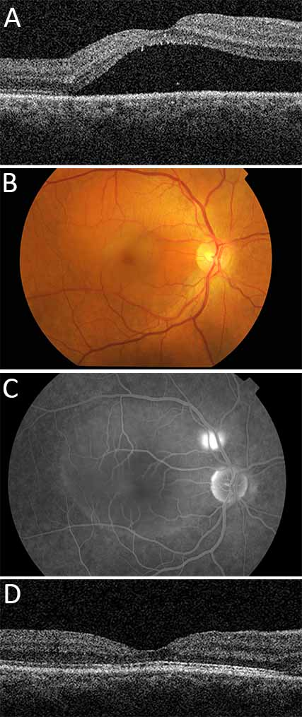 A, This 49 year old man presented to Mr Shah in early 2015 with acute CSR in the right eye. This OCT scan (April 2015) shows a marked collection of fluid under the macula. B, Colour imaging did not reveal any obvious source of leak C, Fluorescein angiography reveals a well-defined point source of leakage from above the optic nerve D, Mr Shah performed angiogram-guided focal laser treatment of the leaking hotspot, following which there is resolution of submacular fluid on repeat OCT scan (August 2015)