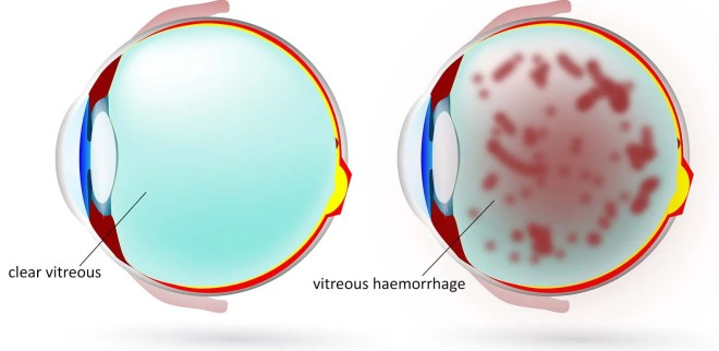 In vitreous haemorrhage, there is bleeding inside the vitreous gel (which is normally clear)